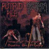 Putrid Pile - Genocide Of The Unborn-Bodies On Display